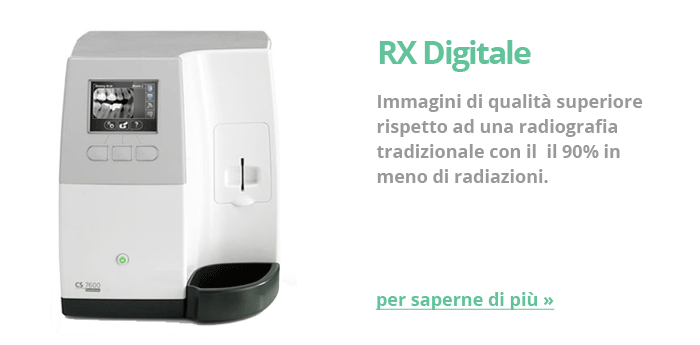 RX Digitale
